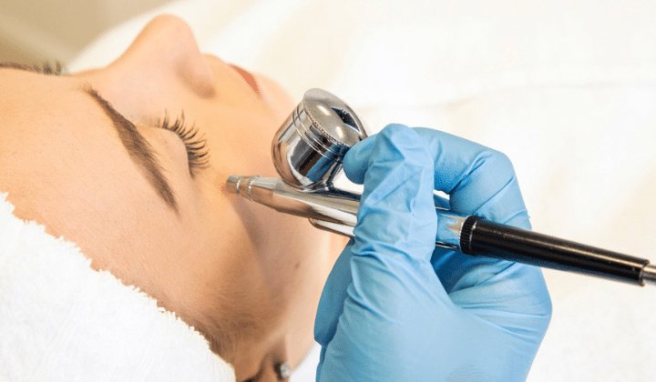 oxigenoterapia facial Etherma