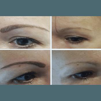 Microblanding pigmentación