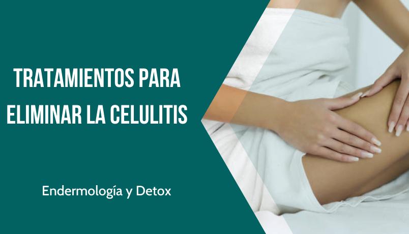 Tratamientos eliminar Celulitis Etherma